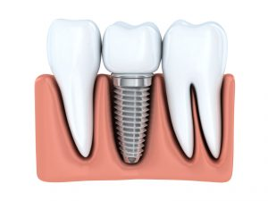 You might be a candidate for dental implants in Glastonbury.