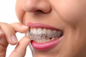 Woman inserting clear aligner into her mouth.
